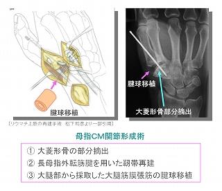 上肢外科センター | 丸の内病院